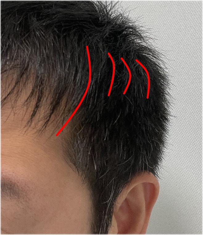 男性前髪切り方ベリーショート